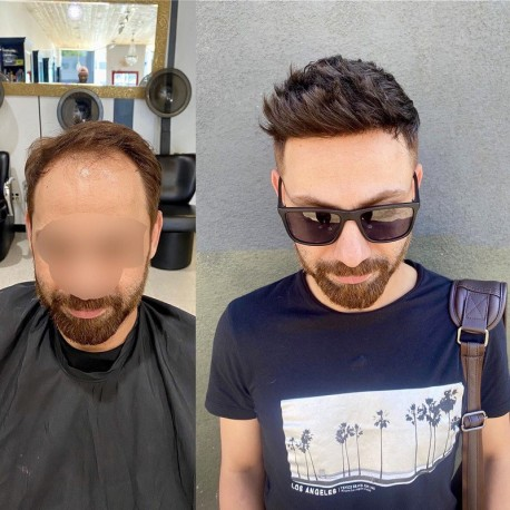 Helios Hair System for Bald Men   Full Swiss Lace Base   Best for Active Lifestyle
